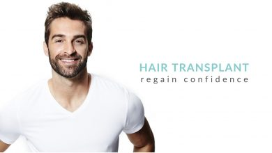 Photo of Important FAQs about Hair Transplantation